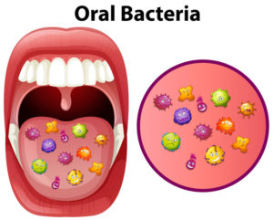 Everything You Need to Know About Oral Infections and How to Treat Them
