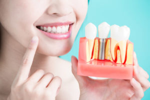 The Truth Cost of Investing in Dental Implants: Are They Worth It?