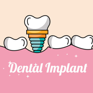 Dental Implants Can Help Patients with Advanced Gum Disease
