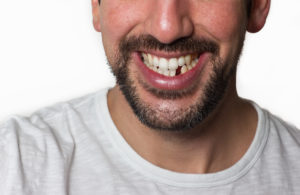 The Truth About a Missing Tooth: Learn Why It Shouldn't Be Ignored