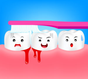 5 Reasons Your Gums May Be Bleeding and How to Stop the Bleeding
