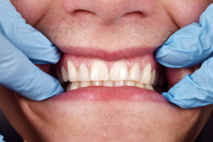 Learn How to Treat Puffy Gums from Home