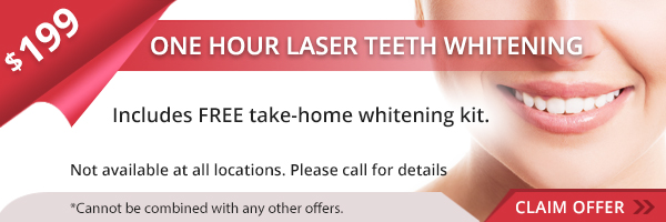 $199 Laser Teeth Whitening