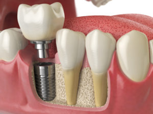 3 Reasons Tooth Implants May Be More Important Than You Think