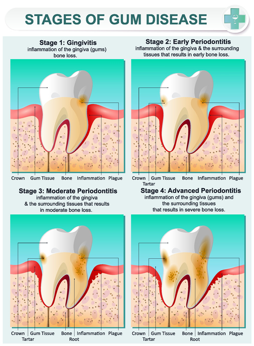 Answers to the Three Most Commonly Asked Questions About Gingivitis