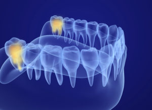 Get Answers to Your Most Commonly Asked Questions About Wisdom Teeth