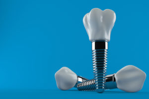 5 Reasons Dental Implants May Be the Best Choice to Replace Your Missing Tooth
