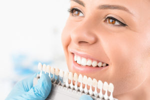 Get the Facts: Is Professional Tooth Whitening Really Worth the Cost?