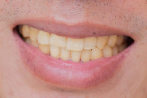 Have You Noticed Your Teeth Have Been Stained? These are 8 Potential Reasons