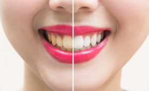 Why Are My Teeth Yellowing? Learn the Cause and the Solution