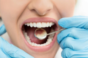 Worried About Enamel Loss? Follow These Tips to Keep Your Enamel Healthy