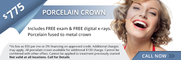 $775 Same Day Crowns