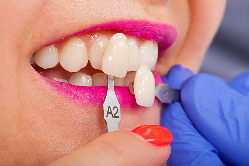 Cosmetic Dentistry Helping You Smile with Confidence