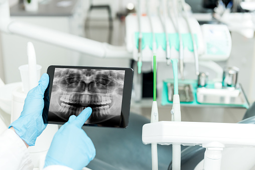 What exactly is digital dentistry, and how does it improve my dental care?
