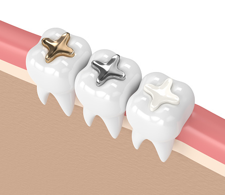 Which tooth filling options is best for me?