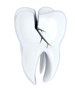 What You Should Know About Tooth Fractures