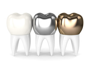 A dental crown requires more planning than one may think