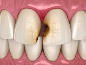 What are the periodontal disease treatment options?