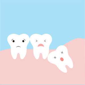 What is an impacted tooth?
