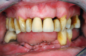 Are oral ozone and chlorohexidine antiseptic mouth rinse effective at preventing chronic periodontitis?