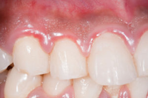 What is gum enlargement and how is it treated?