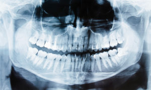 Panoramic X-rays, a comprehensive view of your teeth and jaws