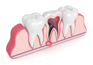 What is a dental cyst?