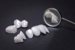 Why porcelain veneers are a good choice?