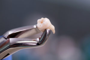 Discover the Three Most Common Causes of Tooth Loss in Adults