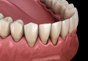 Following These Simple Tips Could Help You Significantly Reduce Your Chances of Getting Gum Disease