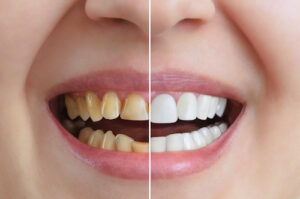 Four Cosmetic Dentistry Options That Could Have a Bigger Impact Than You Realize