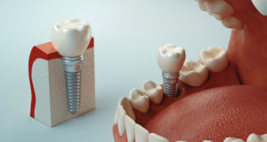Five Steps to Take Care of Yourself After a Dental Implant Procedure