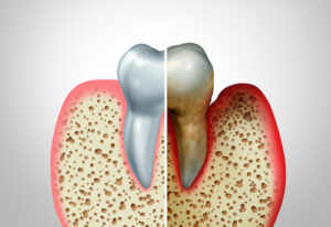 Gingivitis Doesn't Have to Turn into Periodontal Disease: Learn How to Prevent the Progression