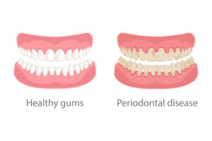 Learn How to Prevent and Treat Gum Disease from the Comfort of Your Own Home
