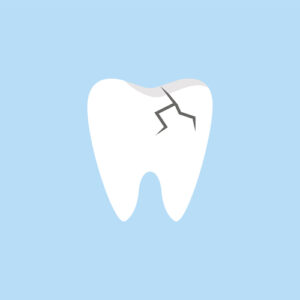Ask a California Dentist: Can My Damaged Tooth Be Saved or Restored?