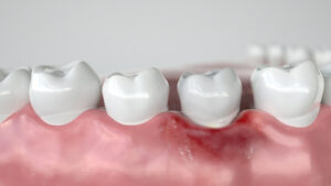 Discover the Five Main Causes of Gingivitis in California Adults