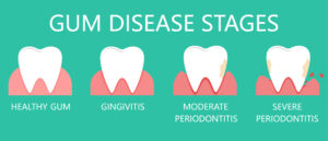 There Are More Treatments for Gum Disease Than You Might Realize