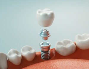 Are You Unsure What Dental Implants Are? Get a Simple Description
