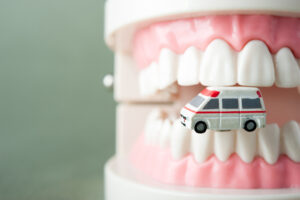 Simple Ways to Reduce the Chances That You Will End Up with a Dental Emergency
