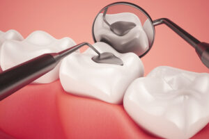 Are You Exhibiting Any of the Most Common Signs of a Dental Cavity?