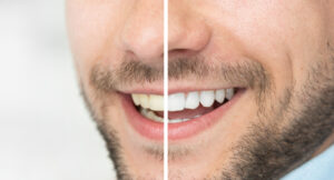 The Truth About Professional Tooth Whitening: How Long Does It Last?
