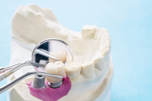 Five Ways Dental Implants Can Be a Better Choice Than Dentures