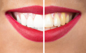 Is Teeth Yellowing a Fact of Life or Can it Be Reversed?