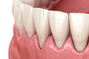 You've Heard of Gum Recession: But Why Does It Happen?