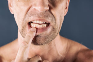 The Truth About Gum Disease: Learn Why it Can Be So Painful and So Dangerous