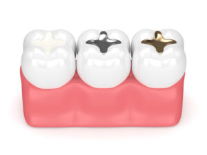 Are You Teeth Starting to Look Gray? Learn the Most Common Causes of This Issue