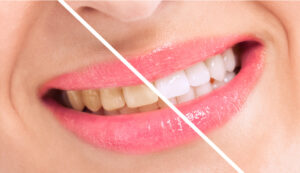 Learn What to Do if You Are Tired of Having Yellowed or Discolored Teeth