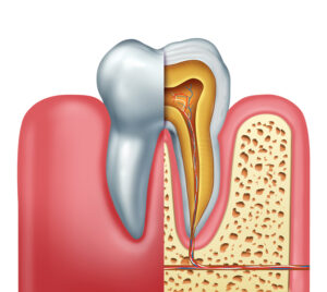 Three Reasons You Might Need a Root Canal: Get the Facts