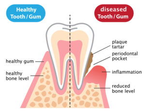 How Bad is Your Gum Disease? Find Out the Telltale Signs That it is Worse Than You Think