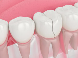 Have You Cracked a Tooth? Learn Some of the Most Common Causes of Cracked Teeth